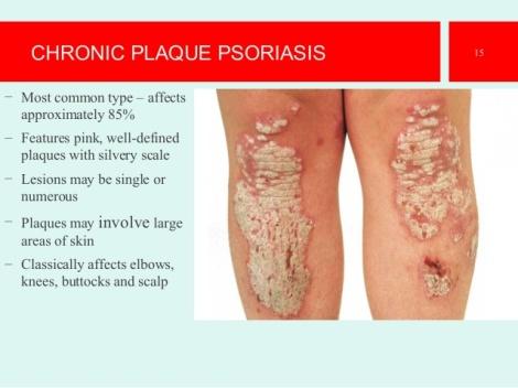 psoriasisthe-best-presentation-15-638