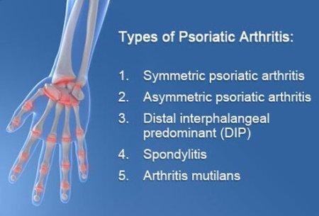 psoriatic-arthritis-s5-chart-of-psoriatic-arthritis-types