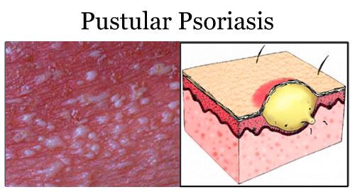 Pustular_Psoriasis_24691